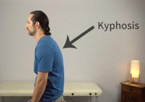 rotator cuff exercises - kyphosis